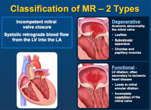Two classifications of MR