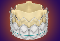 tavr-procedure-th2